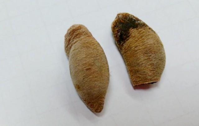 ใครชอบกินกระท้อนดูไว้ !! พบ 2 แม่เฒ่าชาวสุโขทัยกินเม็ดกระท้อน แทงลำไส้ทะลุ อาการโคม่า หมอเตือน ! ห้ามเด็ดขาด อันตรายถึงชีวิต (รายละเอียด)