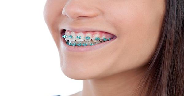 สยอง!! สาวจัดฟันปวดท้องรุนแรง  หมอเอกซเรย์พบลวดจัดฟันเจาะลำไส้นานนับ 10 ปี
