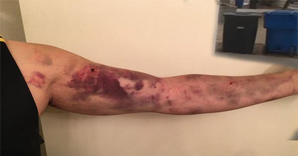 สุดช็อก!! ชายหนุ่มโดนแมลงกัด แต่ก็ไม่คิดอะไร จนสุดท้ายมันทำให้แขนเขาเปลี่ยนเป็นสีแดง สุดสงสัย? รีบไป รพ.!!