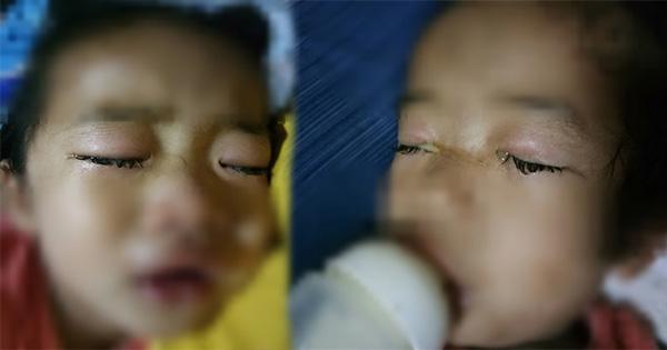 แม่เล่าอุทาหรณ์ ให้ลูก 2 ขวบดูการ์ตูนในมือถือ สุดท้ายตาอักเสบ น้ำเหลืองไหลออกตา